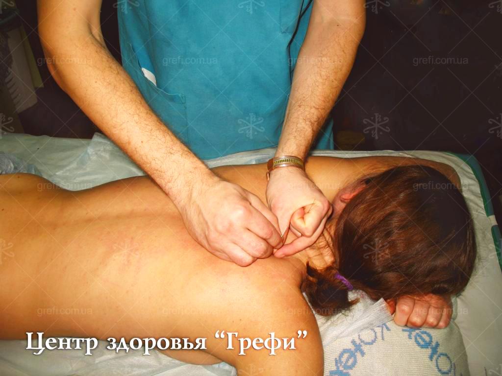 Иглорефлексотерапия, иглоукалывание